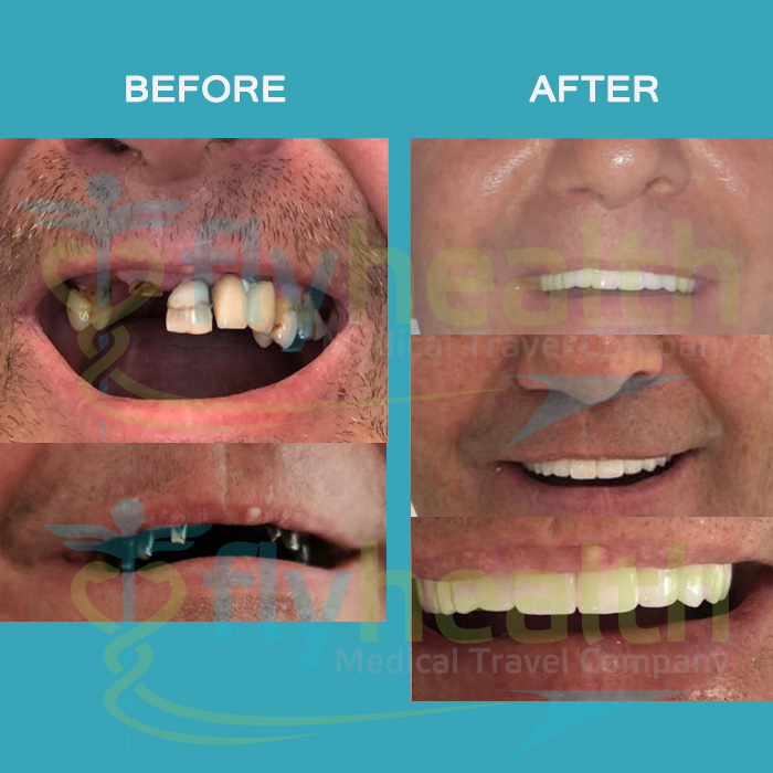 before-after-dental-treatments-09